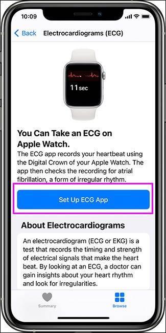 Apple Watch上的ECG应用程序有什么作用?